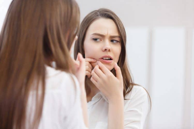skinoren-acne