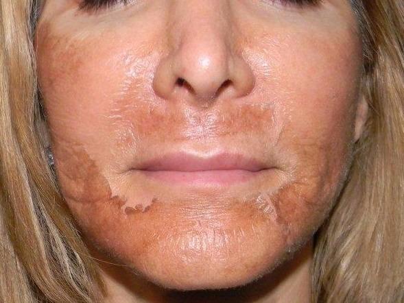 Le peeling du visage